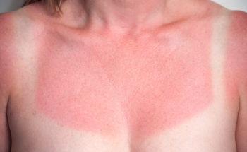 Eerste graads zonverbranding