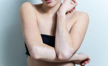 Huidkanker bij vitiligo