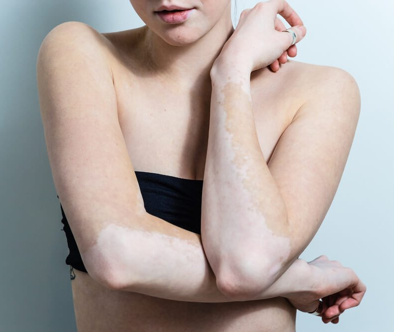 Nieuws - Minder huidkanker vitiligo
