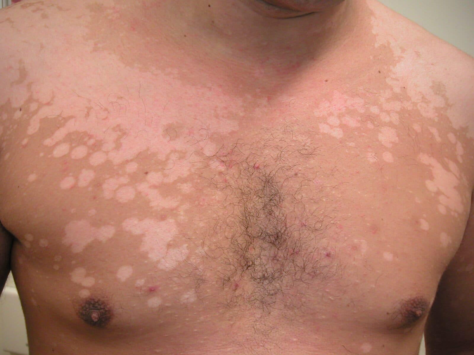 witte vlekjes op de huid