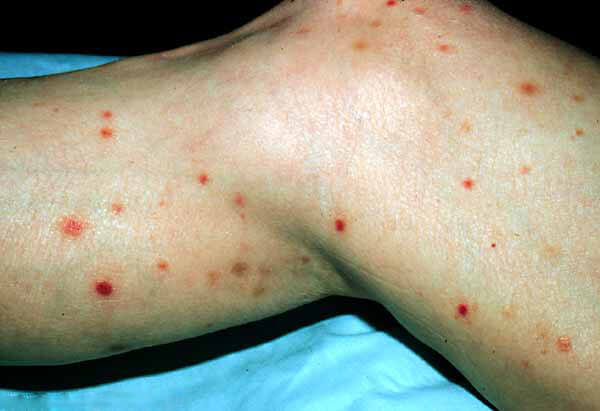 Pityriasis Lichenoides: Background, Pathophysiology ...