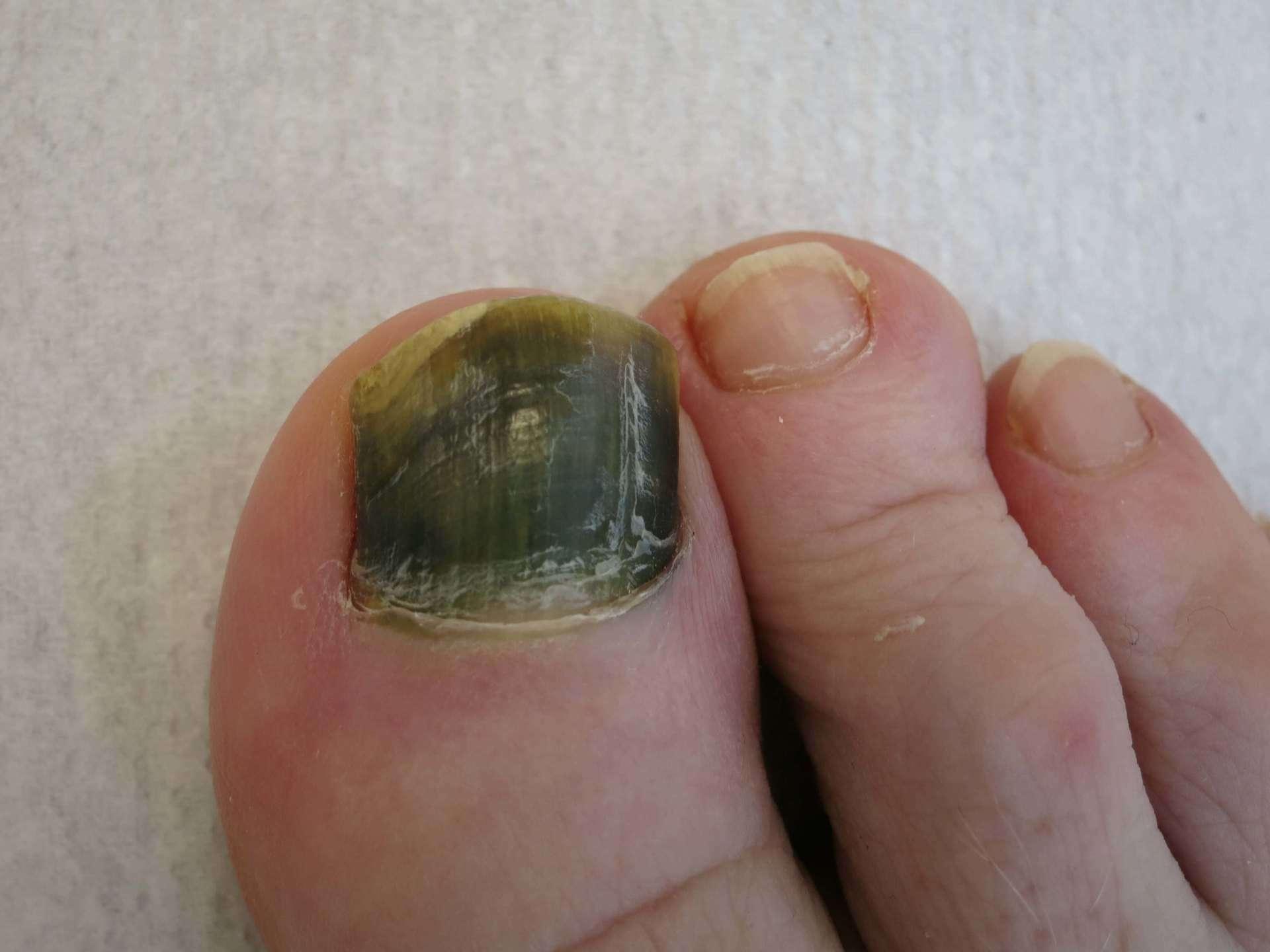 Pseudomonas nail