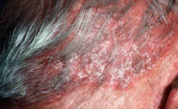 psoriasis hoofdhuid behandeling