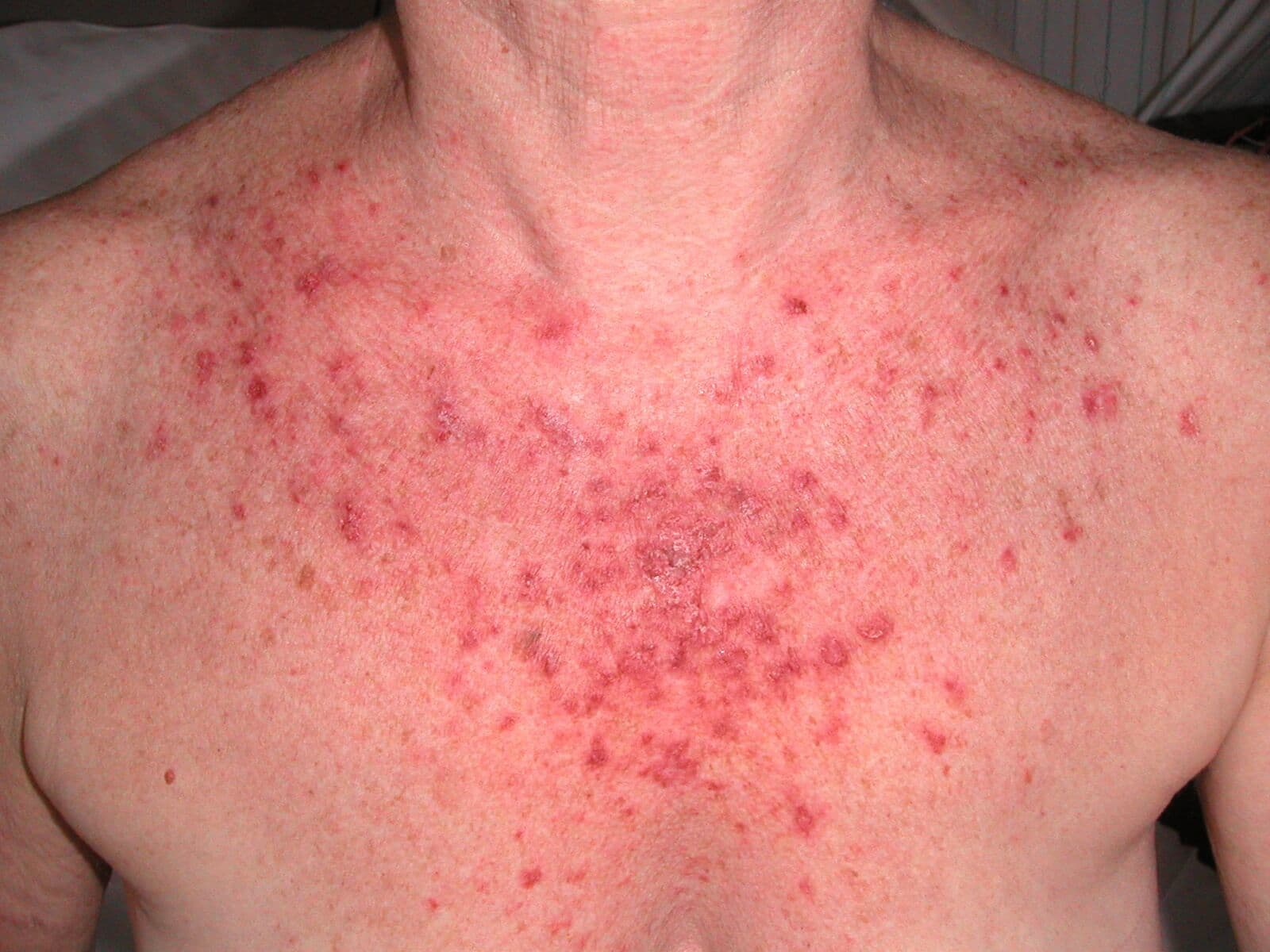 lupus huidziekte