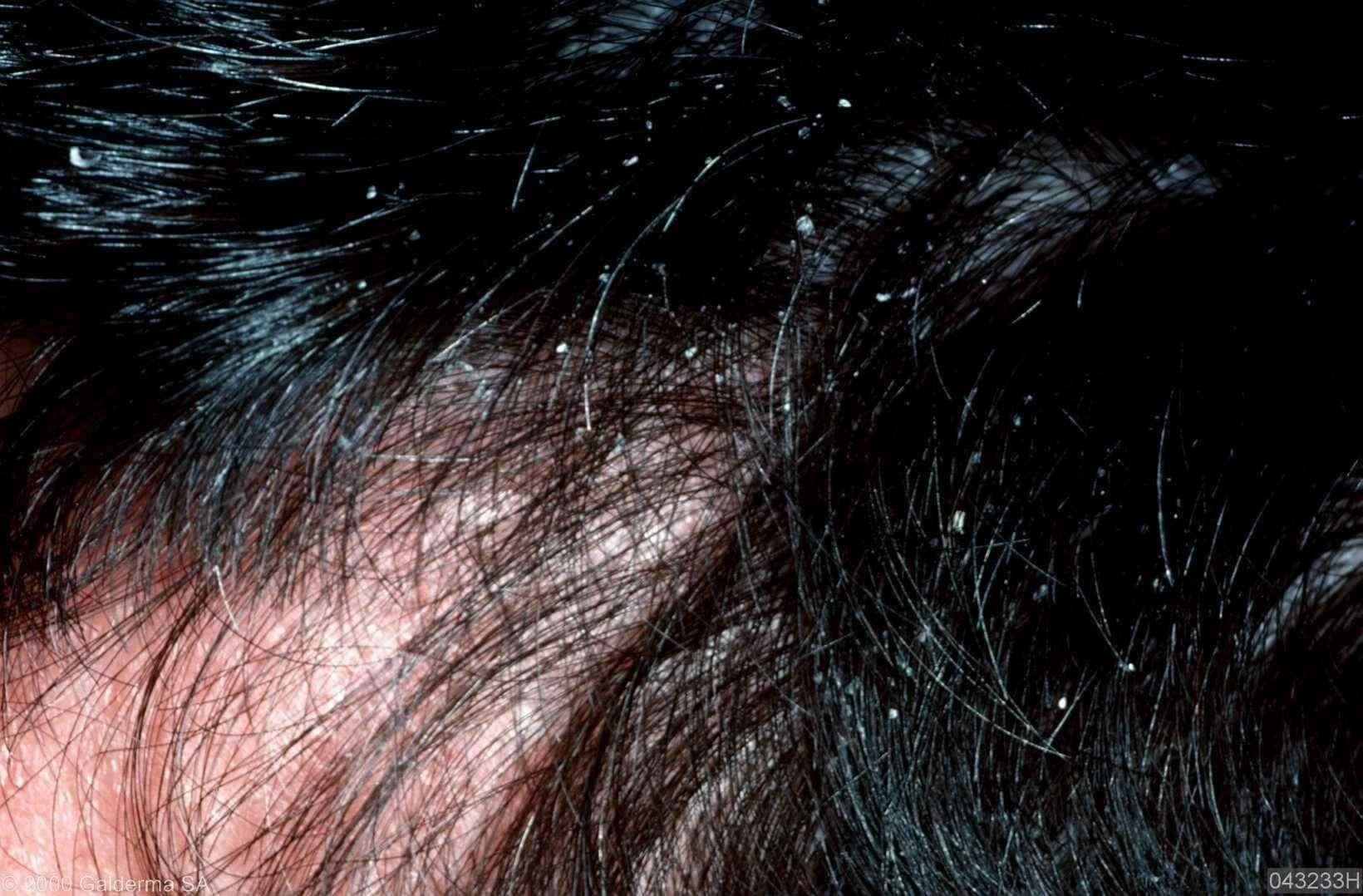 psoriasis hoofdhuid