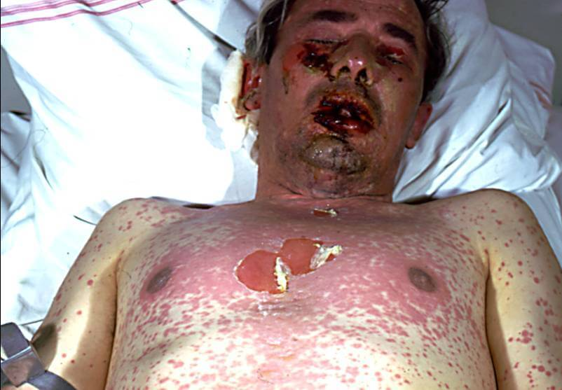 lupus longen
