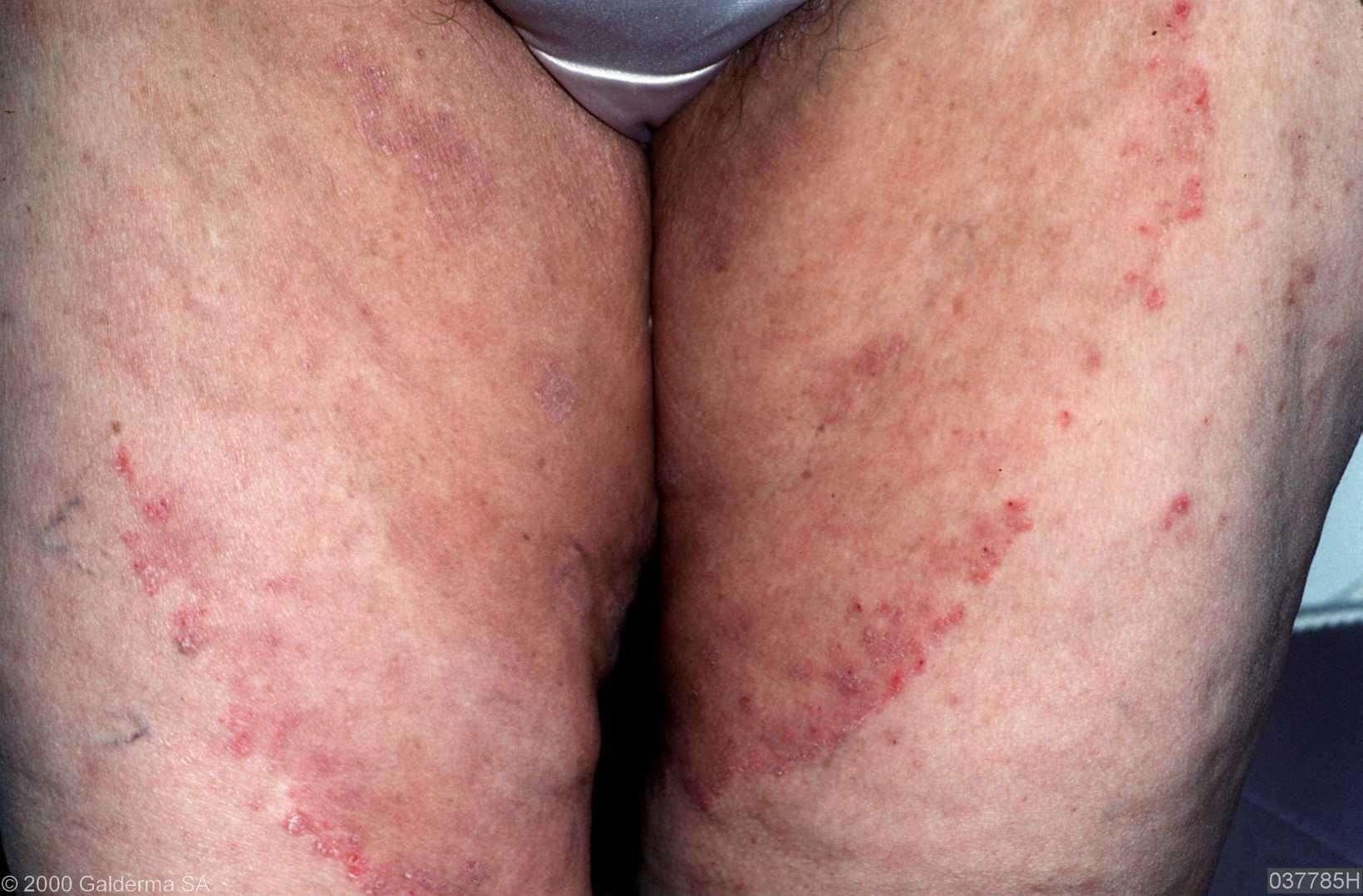 schimmelinfectie lies behandeling
