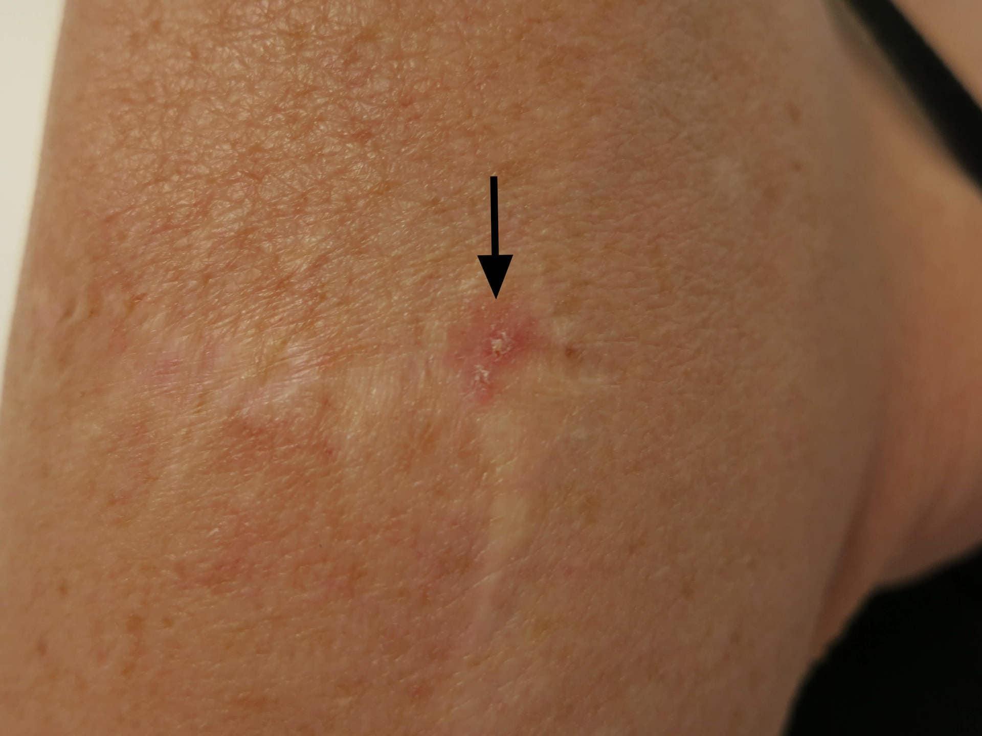 wat is een melanoom