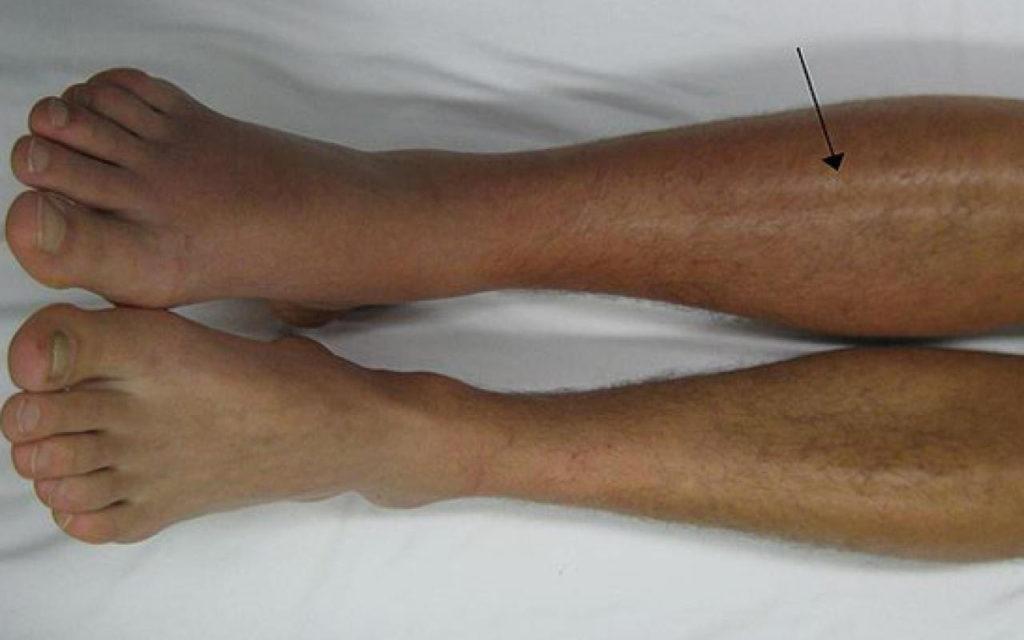 trombose knie symptomen
