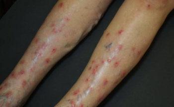 bijwerkingen cortisone injectie knie