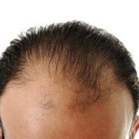 Alopecia androgenetica, mannen