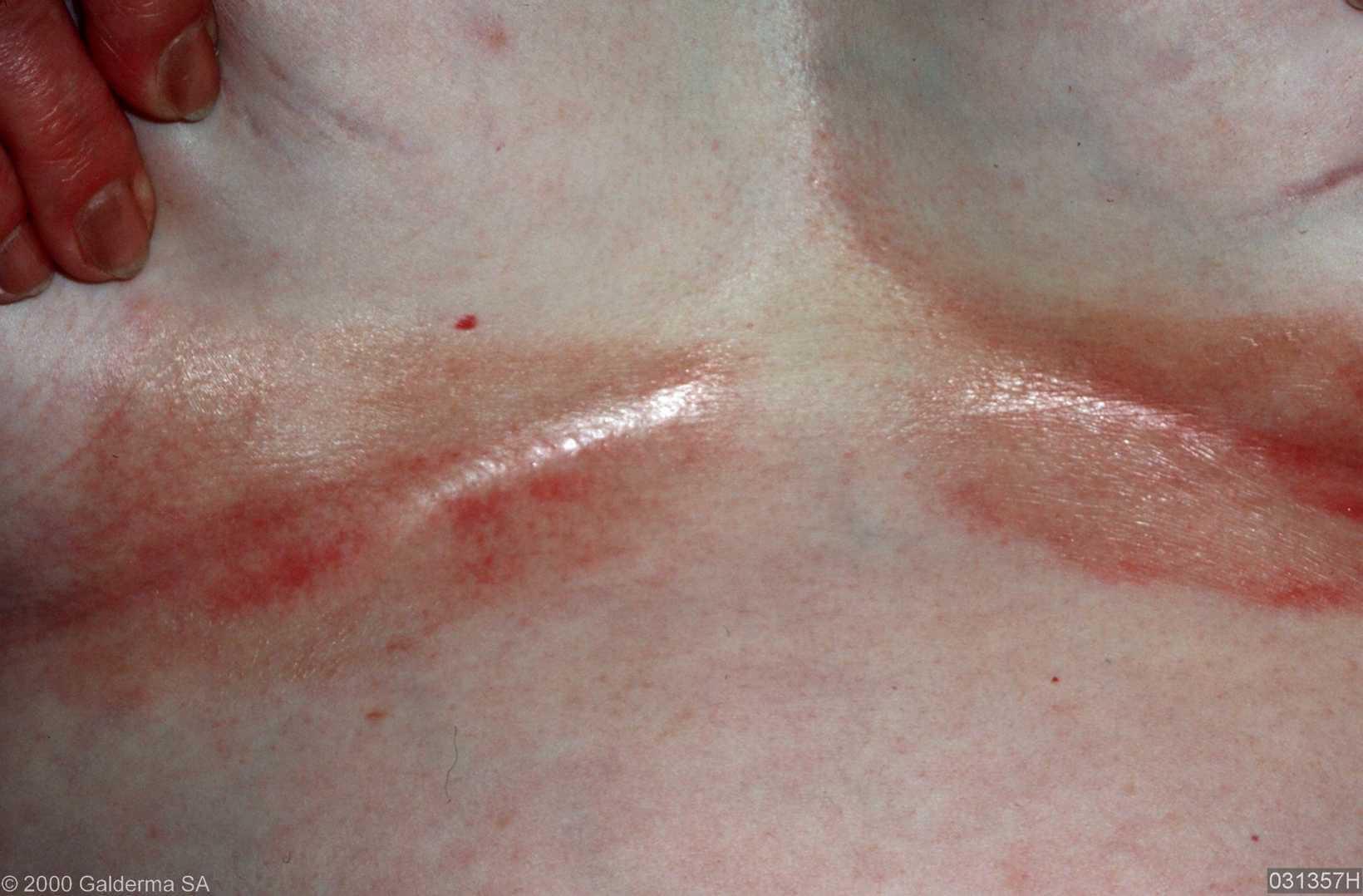 huiduitslag onder borsten