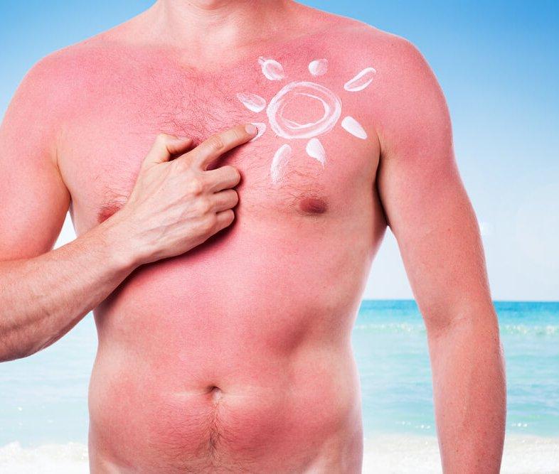 Nieuws 54. Sunburn tattoo