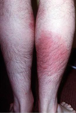 rode warme plekken op huid