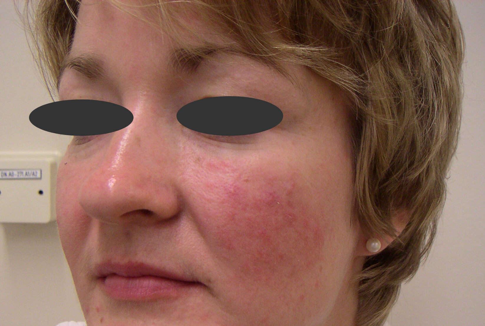 Folliculitis (patientenfolder) - huidziekten.nl