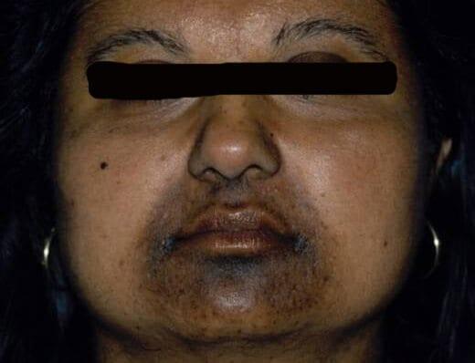 creme tegen vlekken donkere huid