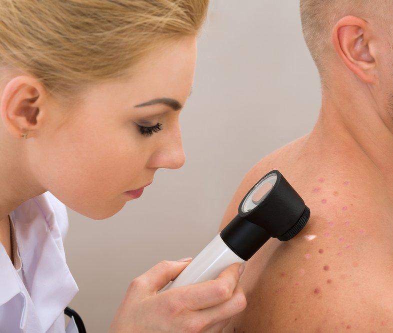 Nieuws 69. Hoe meer melanoom hoe meer doden