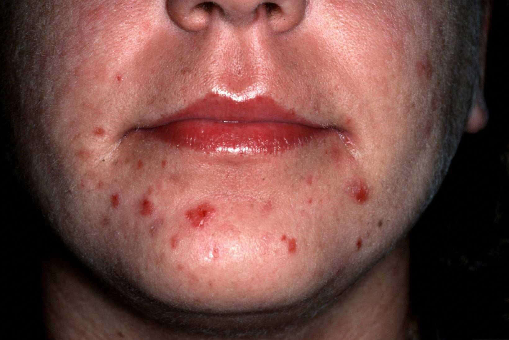 Acne Excoriée Condition, Treatments, and Pictures for ...