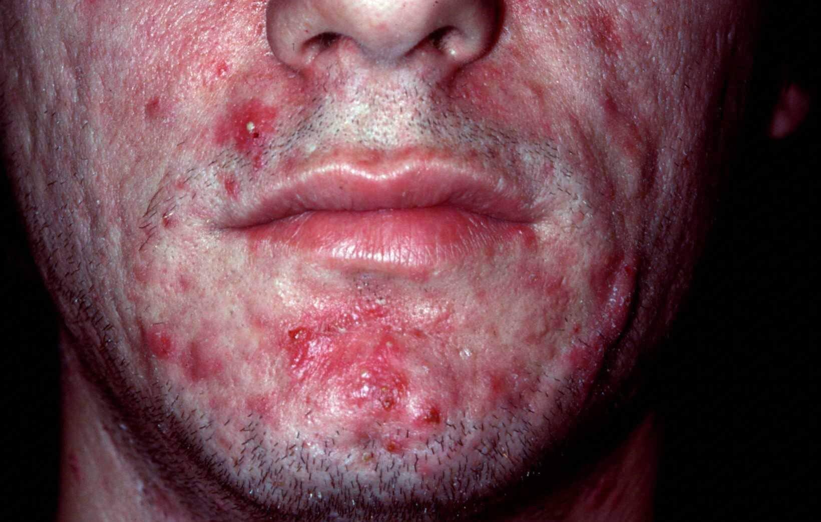 acne hoofd