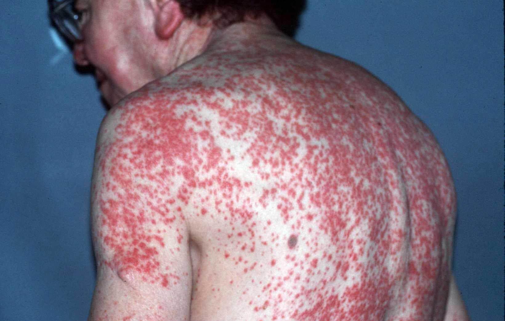 huidziekte rode vlekken