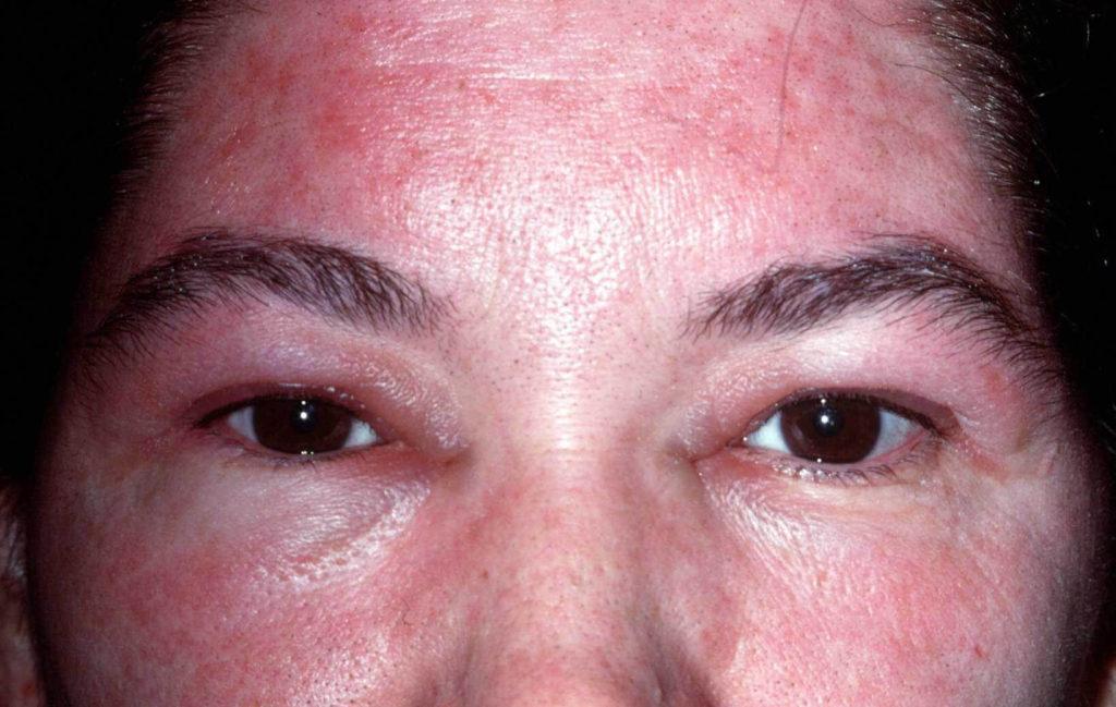 Rode branderige huid gezicht