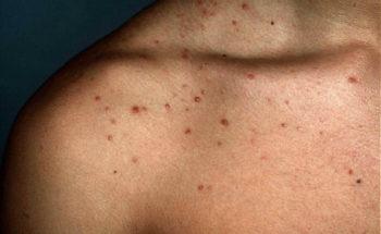 mallorca acne schouder