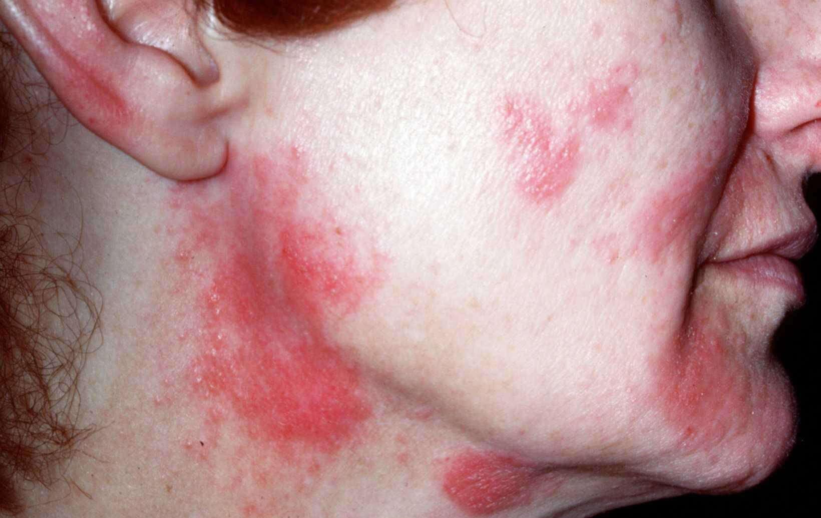 allergie parfum symptomen