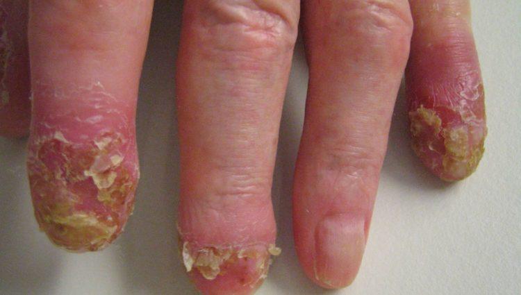 Acrodermatitis continua suppurativa van Hallopeau
