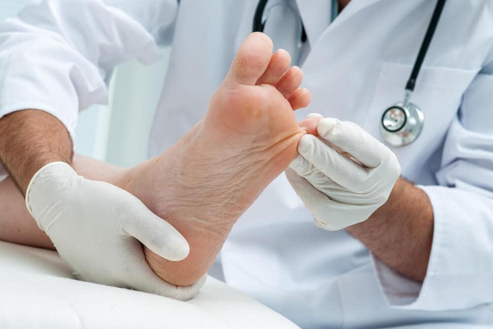 voetschimmelinfectie