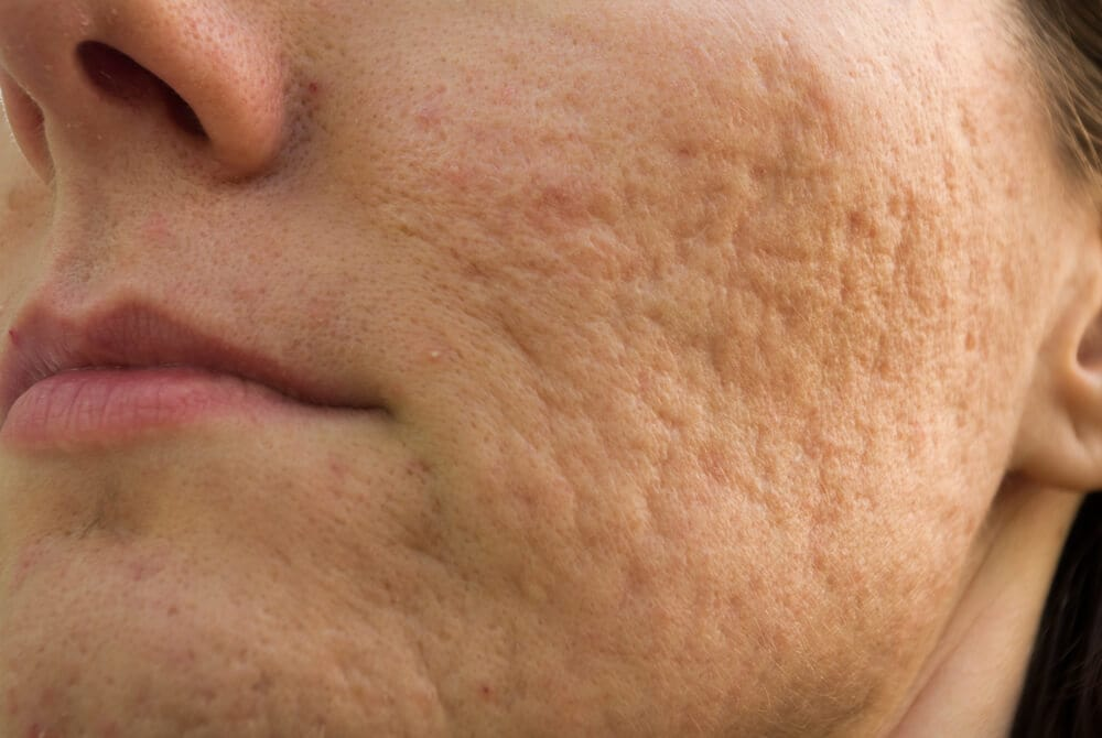 laser acne littekens