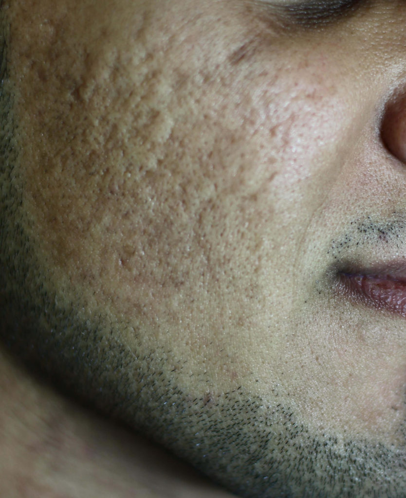 Acne littekens, vóór behandeling met de gefractioneerde CO2 laser