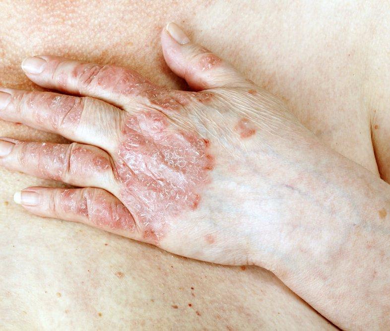 Nieuws 110. Psoriasis en Hart Vaatziekte-enhanced