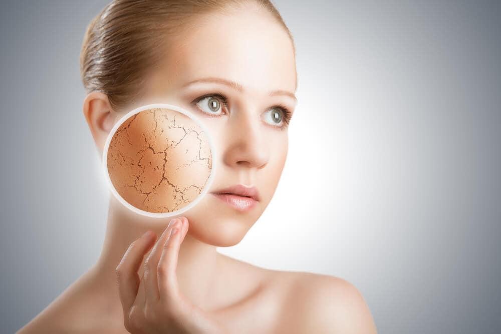 overgevoeligheid huid