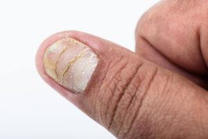 faq-psoriasis-aan-de-nagels