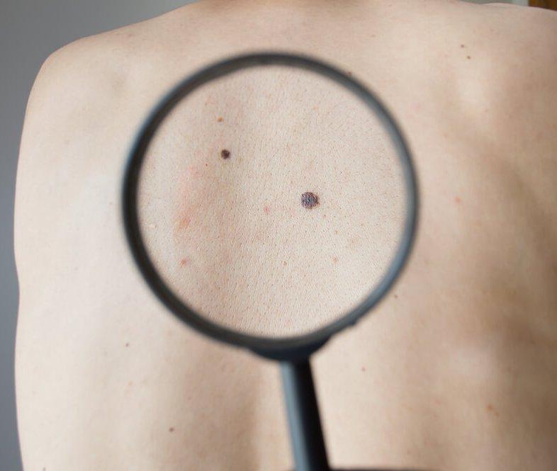 nieuws-120-vaccin-tegen-melanoom