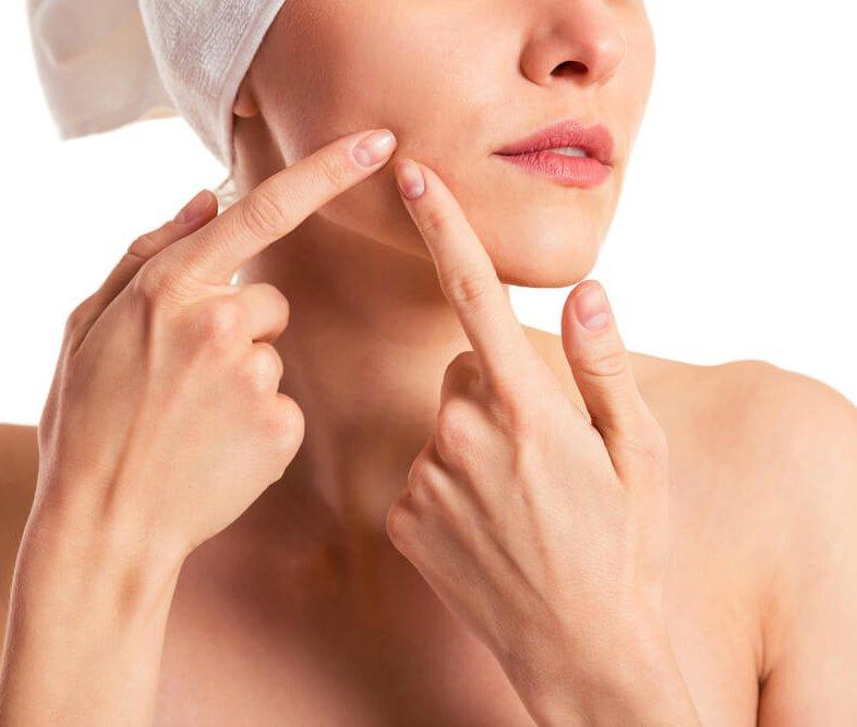 Nieuws 121 acne-op-oudere-leeftijd