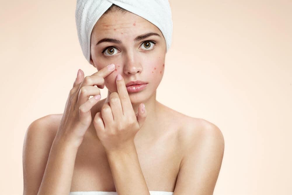 wat te doen tegen acne op gezicht
