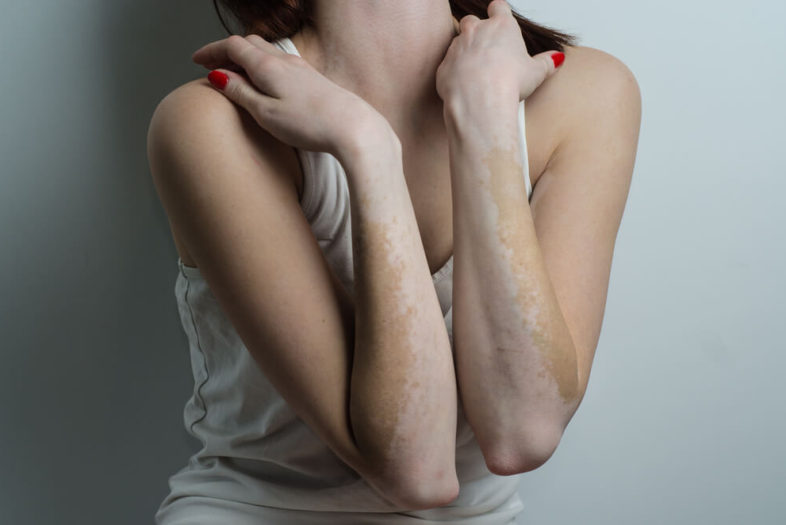 Lichttherapie bij vitiligo