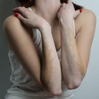nieuws-126-lichttherapie-bij-vitiligo