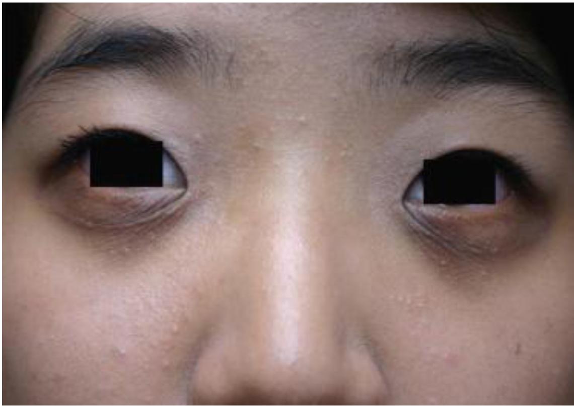 Donkere kringen allergie