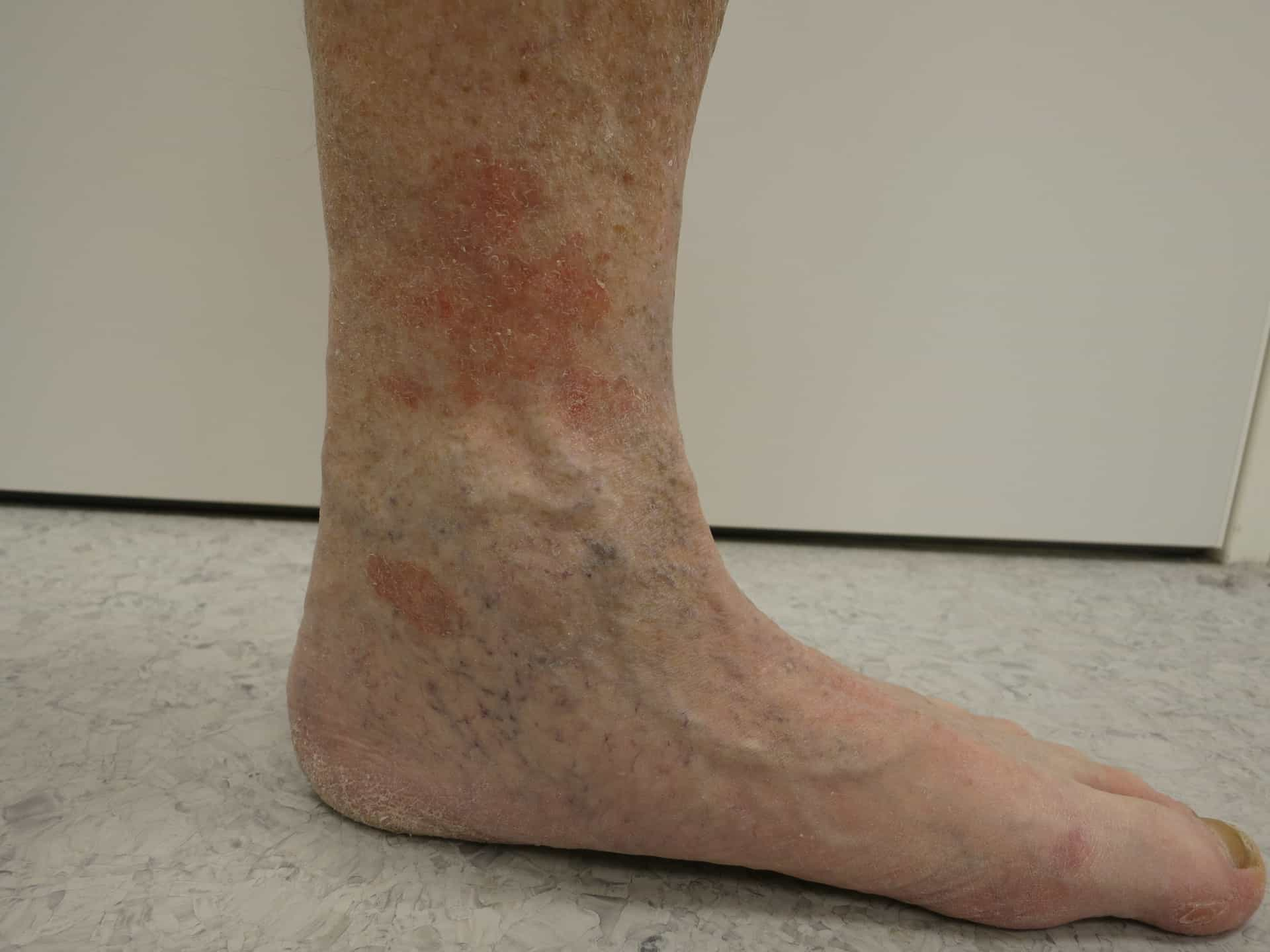 psoriasis tenen