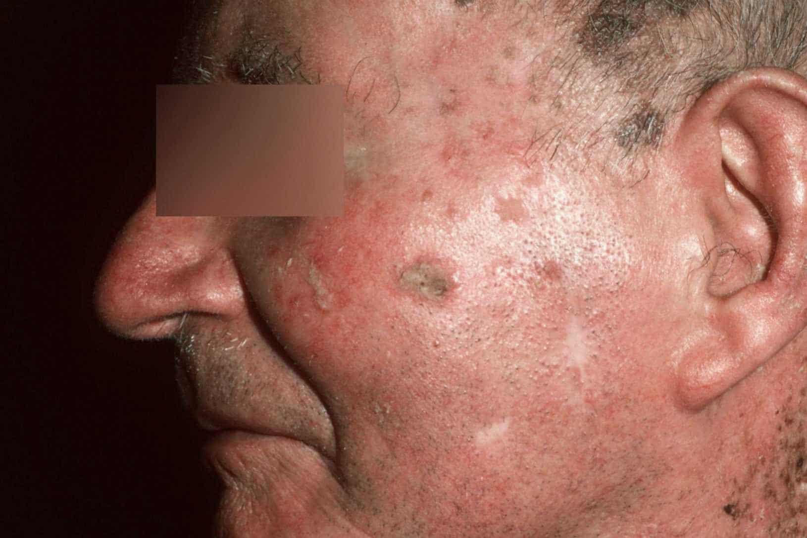 Actinische keratosen op het gezicht