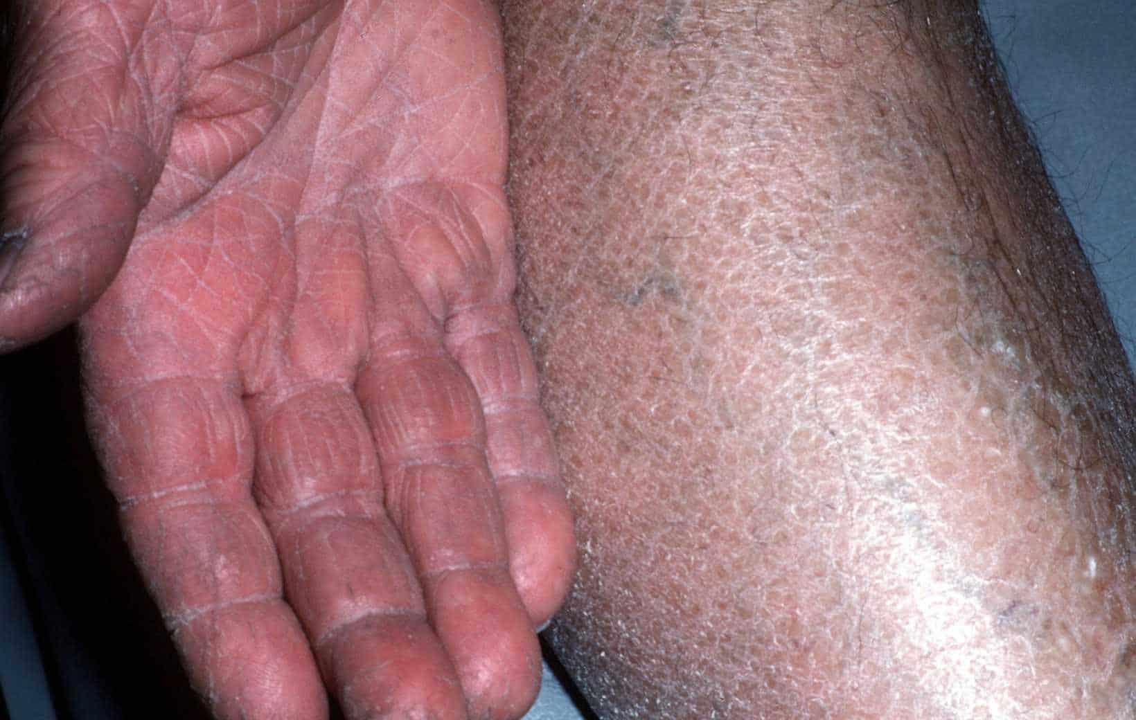 Ichthyosis vulgaris handen en handpalmen
