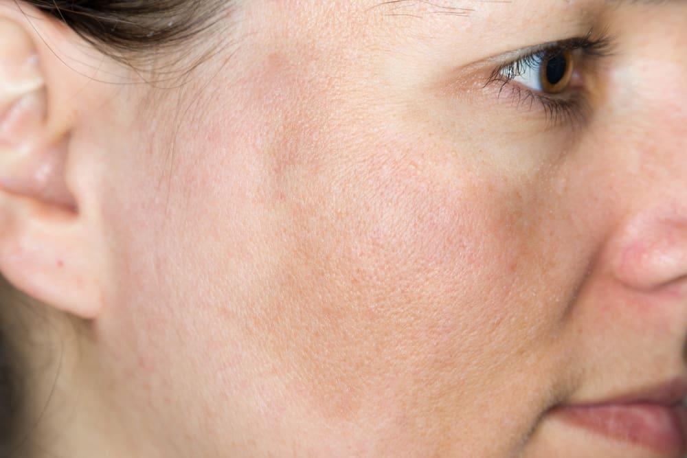 Melasma bij blanke huid