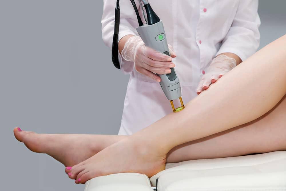 dermatoloog laserontharing