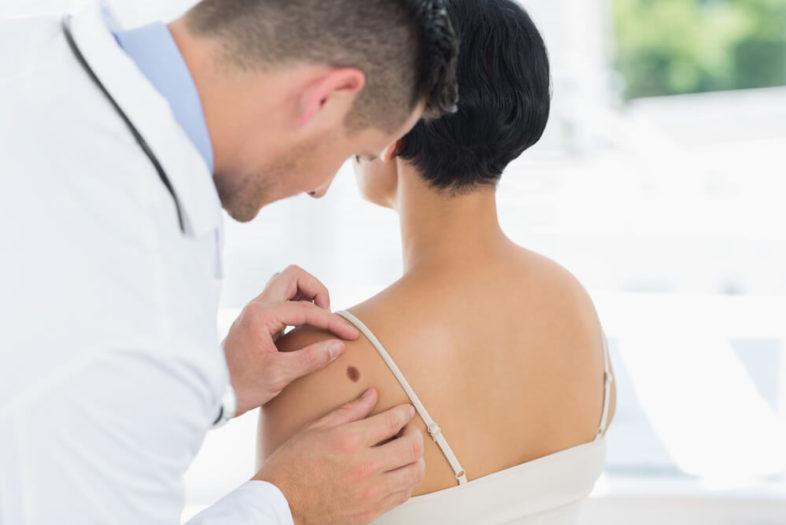 Hoe meer melanomen hoe korter het leven