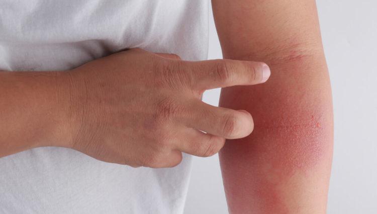 Gestoorde huidbarrière kan atopisch eczeem uitlokken