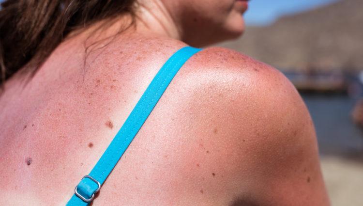 Een zonvakantie betekent een zonverbrand vakantie
