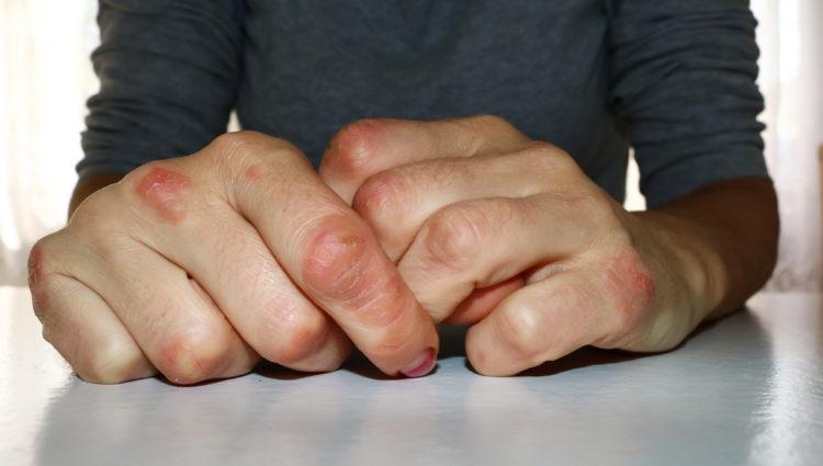 Vroeg ontstane psoriasis versus laat ontstane psoriasis
