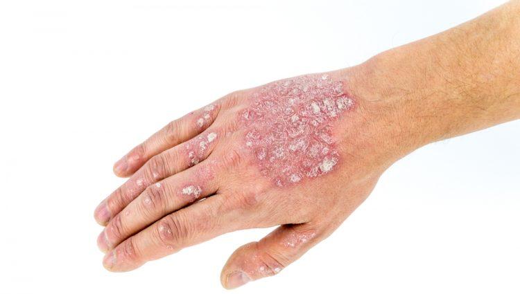 Patiënten lijden het meest wanneer psoriasis aan de handen zit